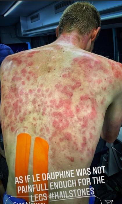 Tim Declercq je objavil fotografijo svojega iznakaženega hrbta na Instagramu.